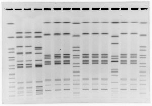 Sample PFGE gel image of 12 Salmonella patterns and 3 S. braendrup references